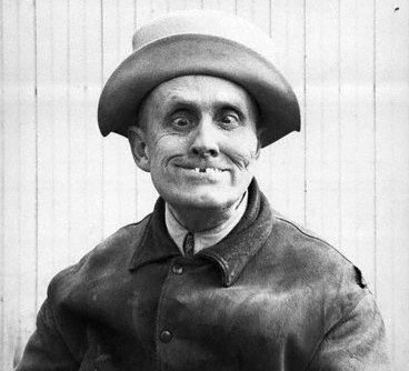 Man In Hat With Crossed Eyes (ca. 1900) © Underwood & Underwood/CORBIS